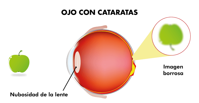 Visión ojo con cataratas