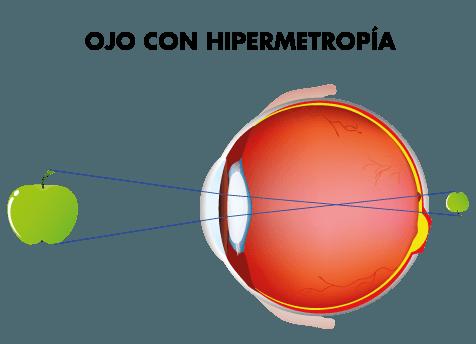 Visión ojo con hipermiopía