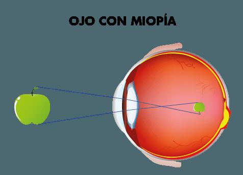 Visión ojo con miopía