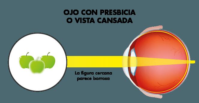 Visión ojo con vista cansada o presbicia