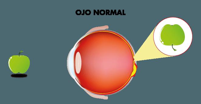Visión ojo sin catarata