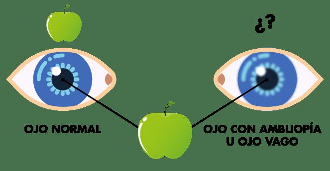 Visión ojo vago o ambliopía