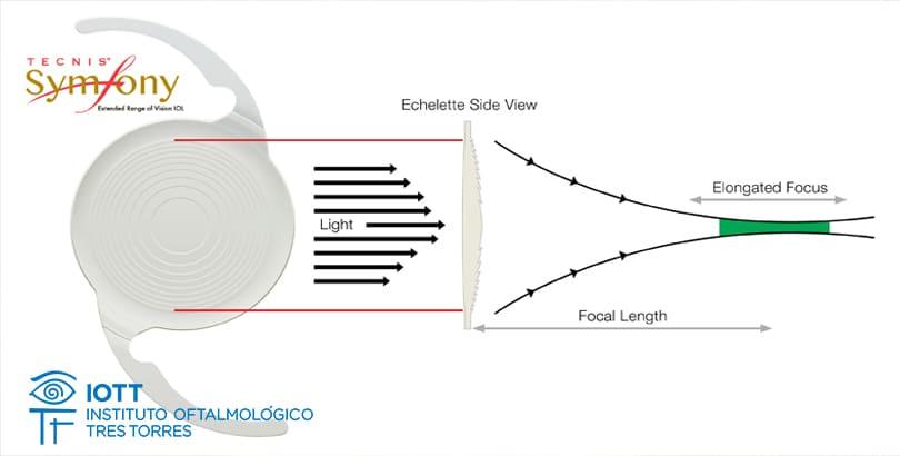 dbb242594a Conoce la lente intraocular de última generación Tecnis Symfony. tecnis  symfony multifocal