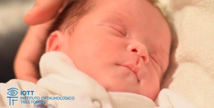 Obstrucción congénita del conducto nasolagrimal recien nacidos