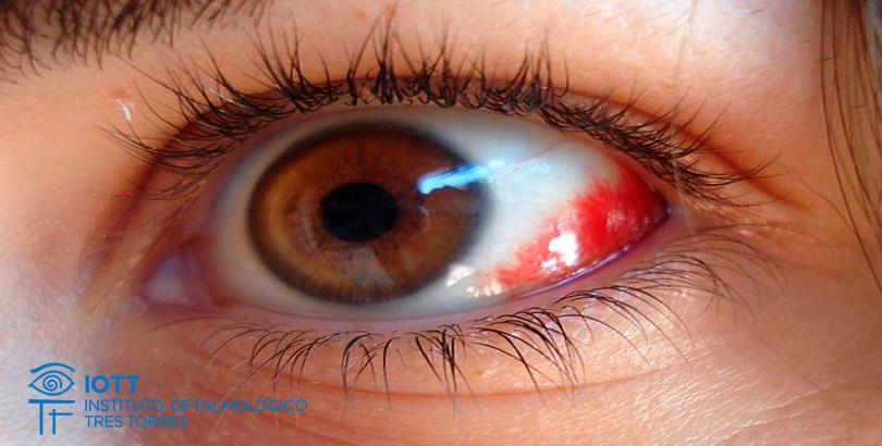 Porque salen derrames en el ojo